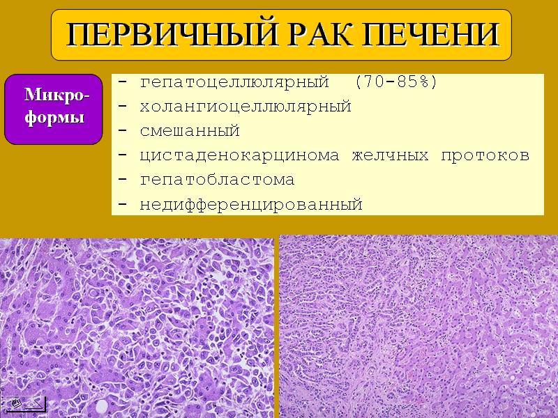 Гепатоцеллюлярный